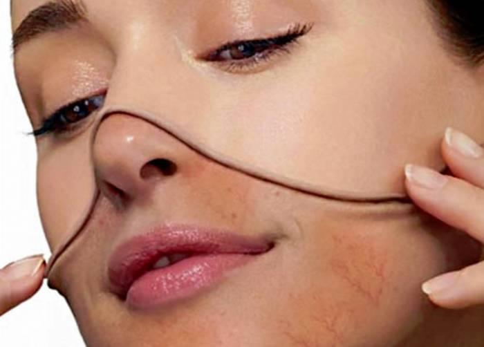 Близкое расположение капилляров на лице