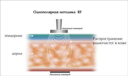 Монополярный радиоволновой метод