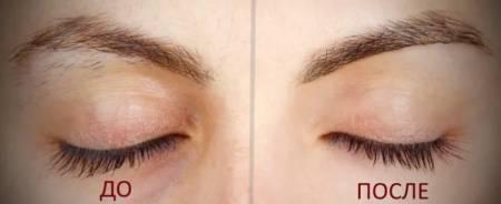 Удаление волос на лице ниткой: техника, противопоказания, уход за кожей после процедуры