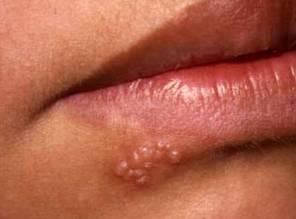 Водянистые пузырьки на губах при герпесе