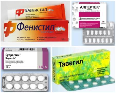 Лекарства от аллергии на коже