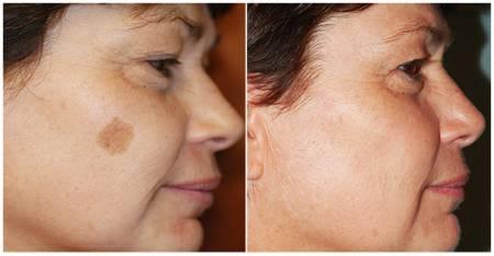 Избавление от коричневых пятен на лице