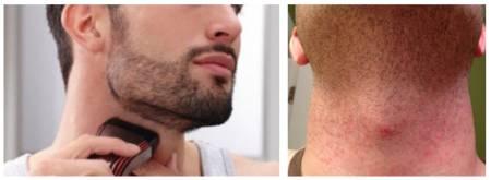 раздражение на шее после бритья