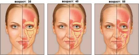 Обвисание кожи лица