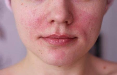 Красная сыпь на лице