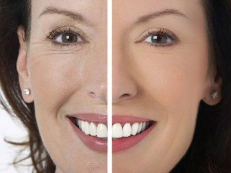 До и после инъекций гиалуроновой кислоты