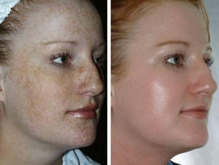 Кислотный пилинг фото до и после