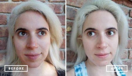 состояние до и после