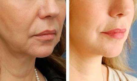 Векторный лифтинг лица: кому можно, этапы процедуры, филлеры, фото до и после